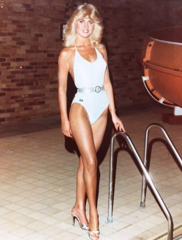 Бывшая королева красоты рассказала о вреде солнечных ванн