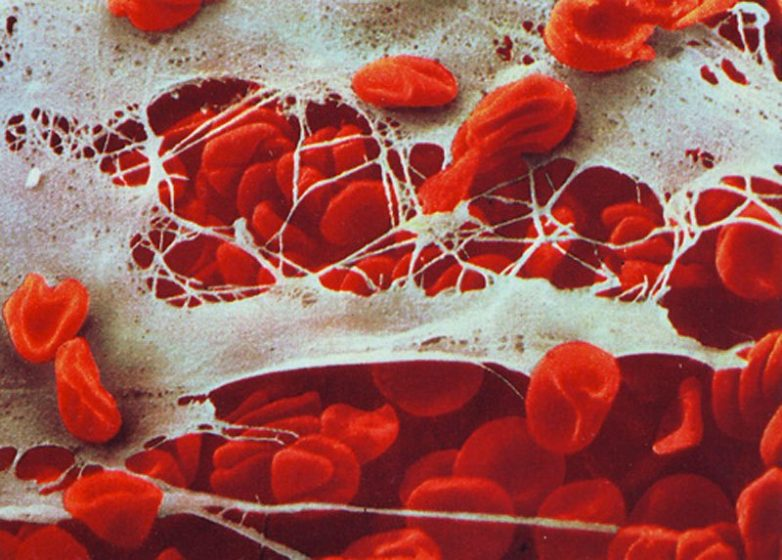 капли против паразитов intoxic