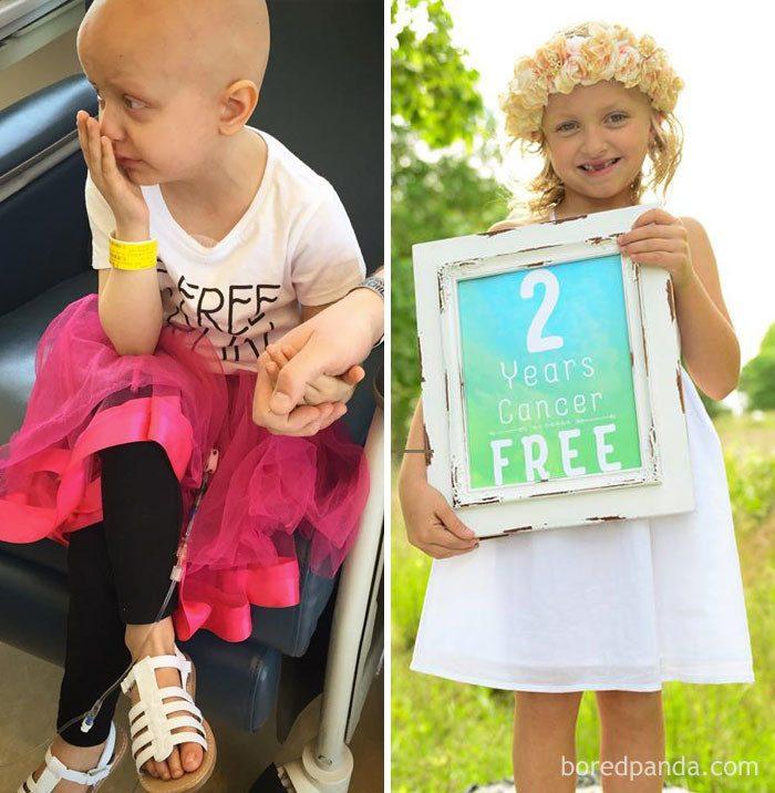 Люди, победившие рак. До и После