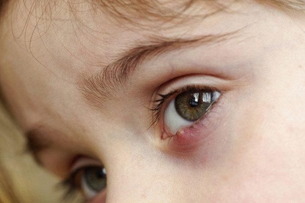 У ребенка при простуде гноятся глаза - что делать 69