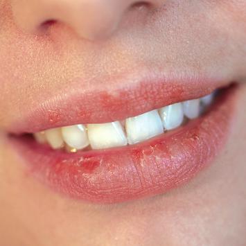 Советы, как спасти губы от сухости и трещин