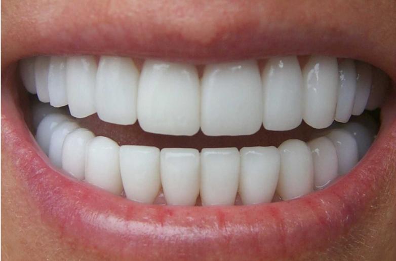 Зачем лечить, если можно вырастить? Учёные предложили революционный способ восстановления зубов