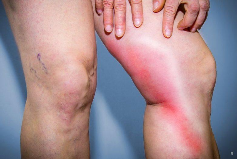 Эти симптомы указывают, если тромб в организме