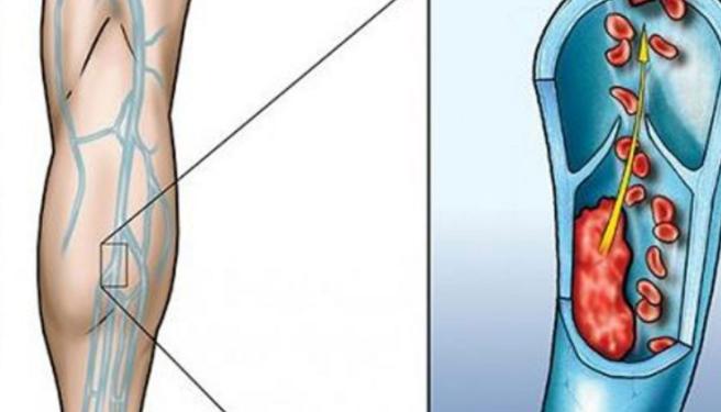 Лечебные настои для улучшения кровообращения в ногах