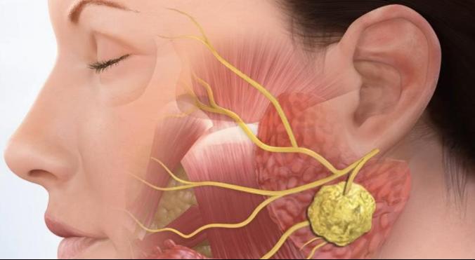 Почему опухают лимфатические узлы