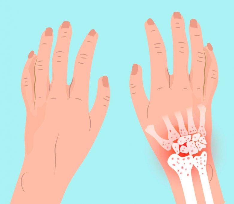 Народные средства для лечения ревматоидного артрита