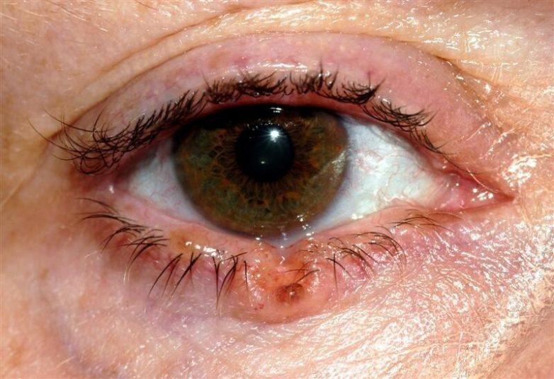 7 признаков рака кожи