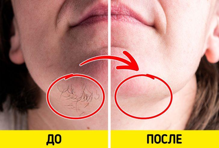 Ингредиенты, которые помогут избавиться от волос на лице в домашних условиях